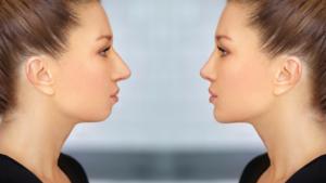Niechirurgiczna korekta nosa